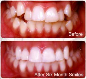 Преди и след лечение с брекети