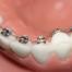 лечение на кривите зъби с брекети