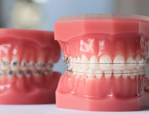 Брекети на горен и долен ред зъби