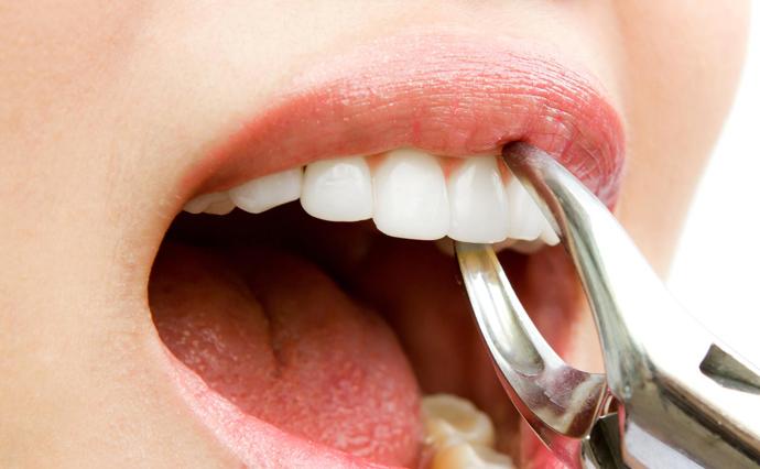 Най-често се отстраняват четвъртите зъби