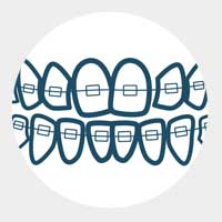 Движението на зъбите започва
