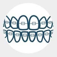 Вече имате почти прави зъби